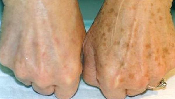 Oto bardzo prosty sposób jak usunąć przebarwienia ze skóry! Ekstra!