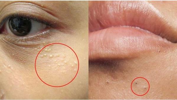 4 typy zmian skórnych, których pod żadnym pozorem nie wolno dotykać! Warto...