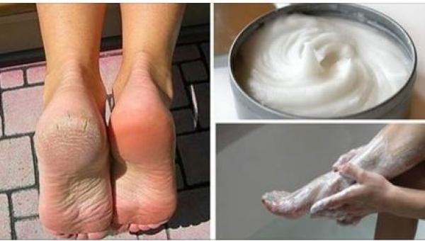 To, co nałożyła na stopy, jest tanie, ale bardzo skuteczne! Nigdy więcej...