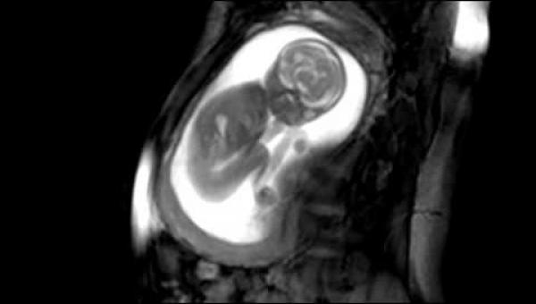 Zobacz jak to dziecko rozpycha się w brzuchu swojej mamy. Wyjątkowe nagranie!