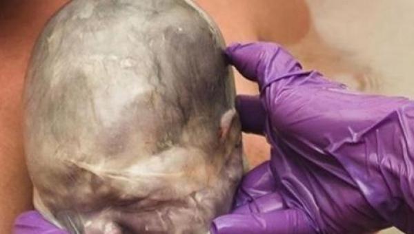 Kiedy położna zobaczyła noworodka uśmiechnęła się - to nie był zwyczajny poród.