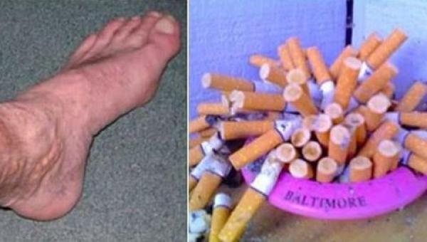 Co dzieje się w ciele człowieka po rzuceniu palenia.