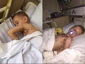 Gorączka niebezpiecznie się podniosła, chłopiec krzyczał z bólu, pojawiły się...