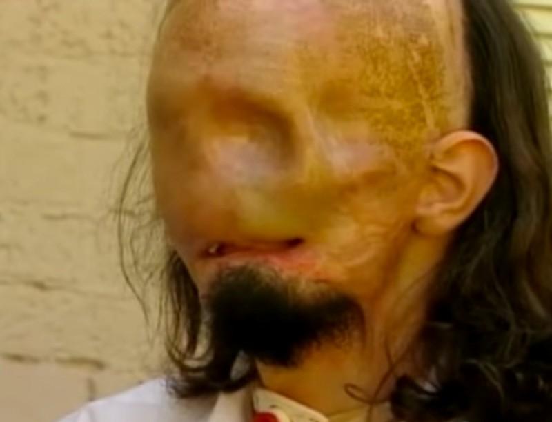 Jego twarz dosłownie stopiła się pod wpływem olbrzymiego źródła energii.