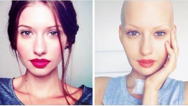 Modelka w tym samym czasie dowiedziała się, że jest w ciąży i że ma raka. Jej...