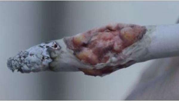 Jeśli to nagranie nie przekona Cię do zostawienia papierosów, nic tego nie...