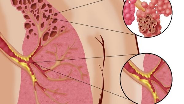 E-papierosy mogą powodować okropną chorobę płuc, koniecznie przeczytaj!