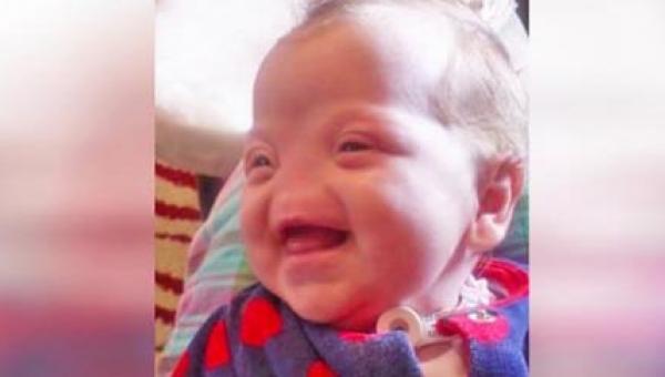 Gdy okazało się, że dziecko urodzi się bez noska, jego matce zaproponowano...