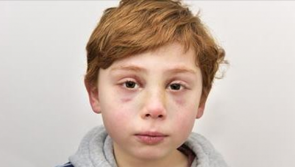 To, co spotkało 7-letniego chłopca, wywołuje łzy. Tyle osób mogło mu pomóc, a...