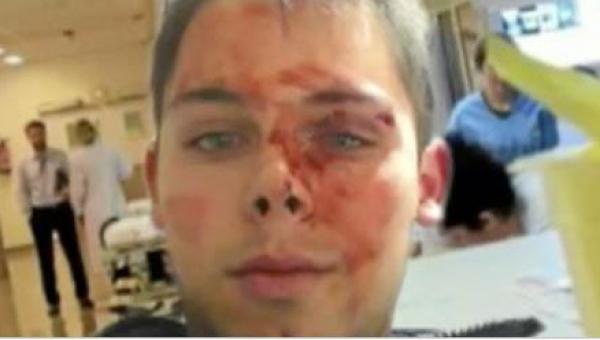 Kiedy odkrył, że ktoś porysował mu auto, zawiadomił policję. Jego rodzice nie...