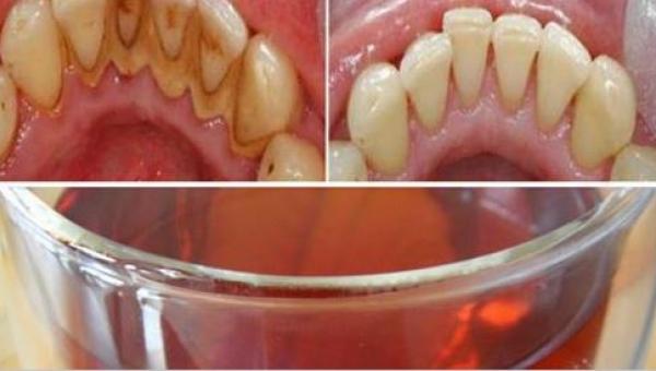 Jeśli chcesz mieć piękne i zdrowe zęby, wyrzuć płyn do płukania jamy ustnej...
