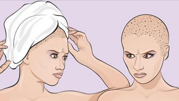Po wyjściu spod prysznica owijasz włosy ręcznikiem? No to źle robisz!...
