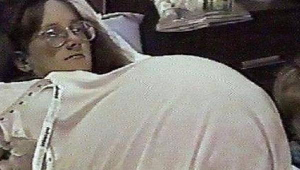 Kobieta zaczęła terapię hormonalną, żeby zajść w ciążę. Kiedy lekarz zrobił...