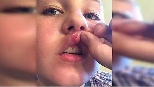 Strażacy odwieźli pobitego, niepełnosprawnego chłopca do domu. Po kilku...