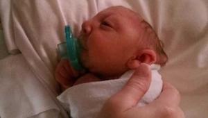 Noworodek, który urodził się bez części mózgu i czaszki zdumiewa świat nauki!