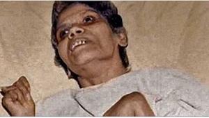 Umiera pielęgniarka, która była przez 40 lat w śpiączce po brutalnym gwałcie!
