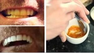 Ten mężczyzna wybielił zęby stosując prostą, ale skuteczną metodę. Zobaczcie, ja
