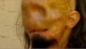 Wybudził się po 3 miesiącach. Kiedy dotknął swojej twarzy, doznał szoku!
