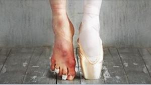 15 zdjęć, które pokazują piękno i... brzydotę baletu.