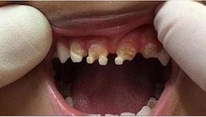 Stomatolog musiał usunąć dziecku aż 11 zębów. Powód jest nieprawdopodobny!