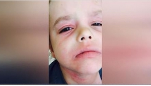 Prawie straciła nadzieję, gdy postanowiła nagrać swojego synka płaczącego z bólu