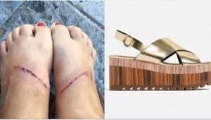 Klientka oskarżyła znaną markę o sprzedaż obuwia, które prowadzi do poważnych op