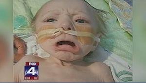 To, co rodzice zrobili swojemu 8-miesięcznemu dziecku, jest straszne!