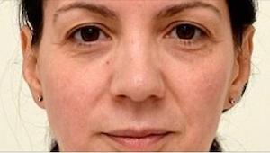 Ta kobieta piła 3 litry wody dziennie przez 4 tygodnie. Efekty widać gołym okiem