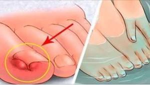 6 prostych sposobów, które pomogą uporać się z problemem wrastających paznokci!