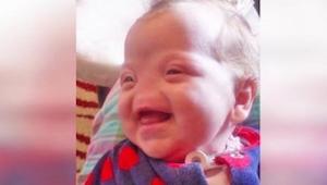 Gdy okazało się, że dziecko urodzi się bez noska, jego matce zaproponowano aborc