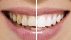 Oto 9 naturalnych trików na bielszy uśmiech! Bez chemii i niepotrzebnych wydatkó