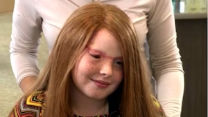 Ta dziewczynka straciła skórę i włosy z głowy. Powód? Aż trudno w to uwierzyć!