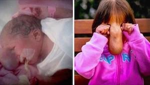 Dziewczynka urodziła się z olbrzymim guzem na twarzy. 4 lata później wygląda zup