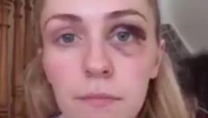 Postanowiła powiedzieć publicznie dlaczego ma podbite oko. Powód porusza do łez!