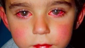 UWAGA: Ten chłopiec stracił 75% wzroku przez zabawkę, którą pewnie macie w domu!