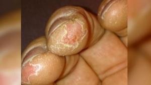 Masz problem z suchą i pękającą skórą dłoni w zimie? Mamy dla Ciebie 5 porad jak