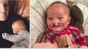 Ich synek urodził się ze zniekształconą twarzą. Reakcja lekarza? Szok!