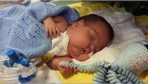 Dziecko urodziło się przed czasem. Kiedy lekarze położyli obok niego  ośmiornicz