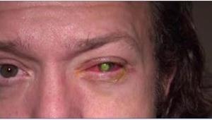 Przez jeden błąd stracił wzrok. Jeśli nosisz okulary lub szkła kontaktowe, lepie