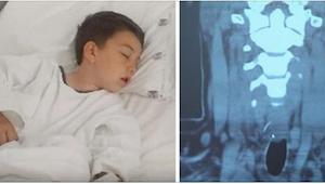 Chłopiec poczuł silny ból brzucha po zjedzeniu hamburgera. W szpitalu dokonali s