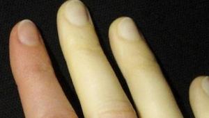 Nie ignorujcie tych 9 powszechnych objawów, mogą zwiastować poważną chorobę!