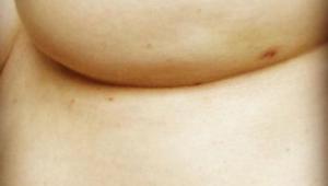 Niepozorne zdjęcie piersi skrywa bardzo mało znany objaw nowotworu. Widzisz go?