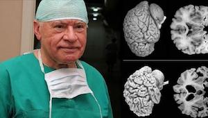 Neurochirurdzy biją na alarm. Każda kobieta powinna poznać te fakty!