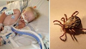 2 latka zmarła po zabawie na podwórku - teraz jej załamana rodzina ostrzega wszy