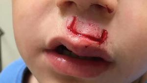 Popularna zabawka wybuchła jego synowi prosto w twarz - teraz ojciec ostrzega in