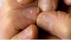 Jeśli Twoje paznokcie są w prążki może to być objawem poważnej choroby!