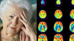 9 nawyków, które zapobiegają zachorowaniu na Alzheimera!