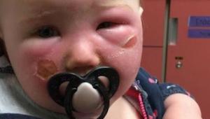 Uwaga! Matka ostrzega innych rodziców przed preparatem z filtrem - poparzył jej