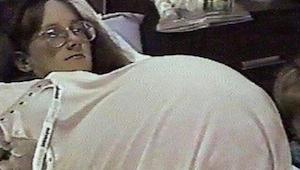 Kobieta zaczęła terapię hormonalną, żeby zajść w ciążę. Kiedy lekarz zrobił jej