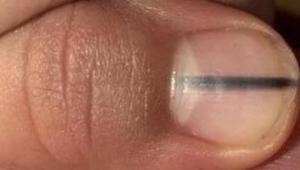 Szokujące: manikiurzystka zauważyła czarną linię na paznokciu klientki i kazała